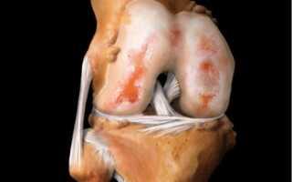 Как лечить артрит коленного сустава медикаментозное лечение?