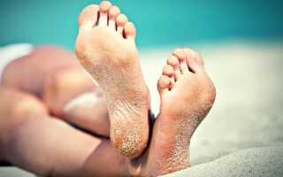 Сухая кожа стопы ног причины и лечение