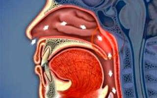 Заболевание носоглотки симптомы и лечение