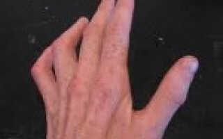 Нейропатии локтевого нерва лечение