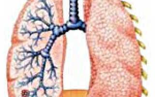 Односторонняя пневмония у детей симптомы и лечение