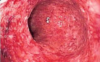 Грибок кишечника симптомы лечение