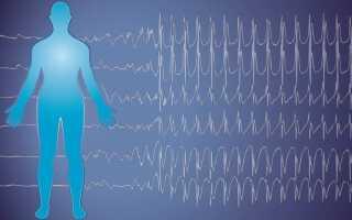 Эпилепсия причины возникновения у взрослых симптомы и лечение