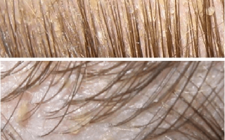 Чешется голова выпадают волосы причина лечение