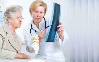 Остеопороз симптомы и лечение какой доктор лечит остеопороз