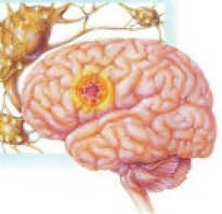Фокальная эпилепсия у детей симптомы и лечение