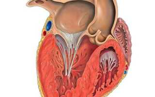 Гипертрофия левого желудочка сердца что это такое симптомы лечение