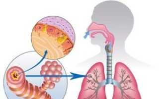 Бактериальный бронхит симптомы лечение