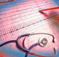 Сбой ритма сердца лечение