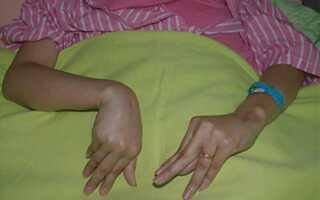 Лечение спазмофилии у детей