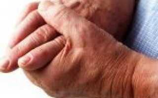 Артрит указательного пальца руки лечение