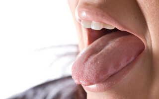 Воспаленный язык причины лечение