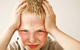 Ветряная оспа у детей симптомы и лечение профилактика