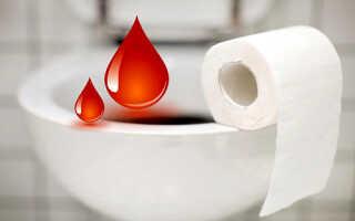Кровь после дефекации без боли причины лечение