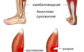 Как лечить растяжение мышц на ступне?