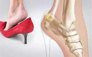Болезнь пяток ног лечение