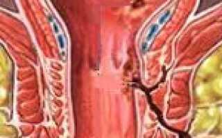 Свищ прямой кишки симптомы лечение