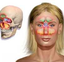 Двусторонний верхнечелюстной синусит лечение