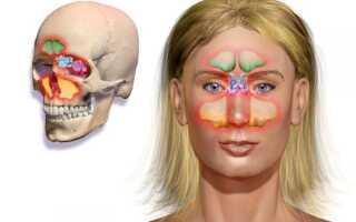 Двухсторонний синусит лечение