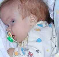 Гидроцефалия лечение у ребенка