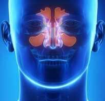 Гайморит синусит симптомы лечение