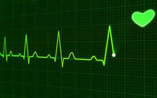 Слабый пульс причины и лечение при высоком давлении