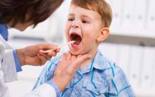 Сухой лающий кашель у ребенка ночью чем лечить