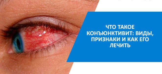 Что такое конъюнктивит глаз и как его лечить?