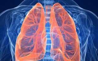 Парасептальная эмфизема легких что это такое как лечить