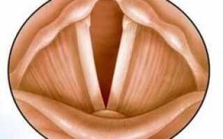 Воспаление голосовых связок симптомы и лечение у детей