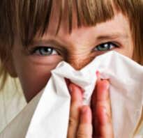 Отек носа у ребенка чем лечить