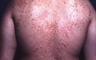Кольцевидная гранулема лечение народными средствами