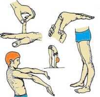 Гипермобильность суставов у детей лечение