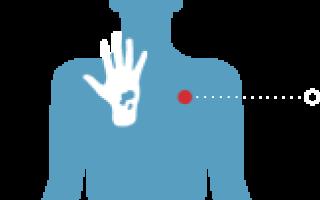 Болезнь лане диагностика лечение причины