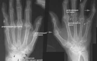 Полиостеоартроз лечение кистей рук