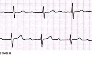 Блокады сердца лечение
