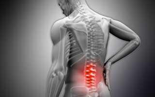 Склероз спины лечение