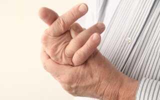 Остеоартроз пальцев рук лечение