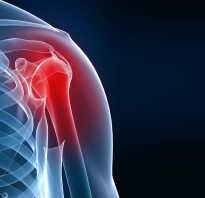 Артроз плеча лечение