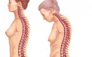 Анкилозирующего спондилоартрита лечение