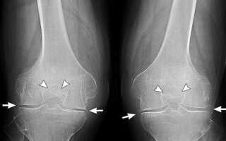 Народное лечение коленного артроза