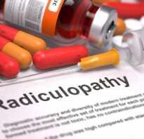 Радикулопатия что это такое симптомы лечение