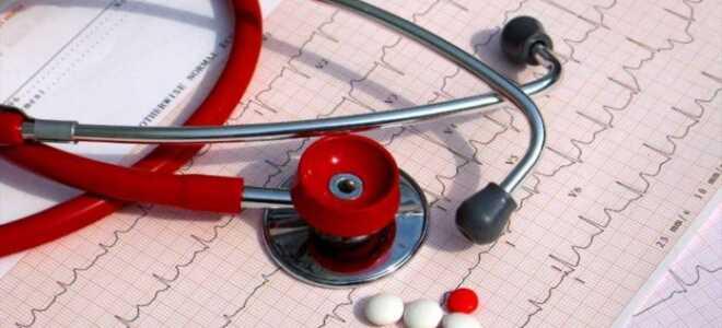Как лечить мерцательную аритмию сердца современные препараты для лечения?