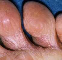 Грибок межпальцевый лечение