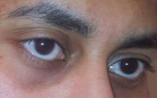 Синяки и мешки под глазами у мужчин причины и лечение
