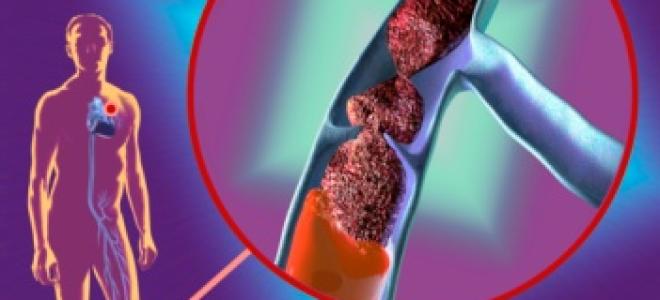 Как лечить тромбоз вен?