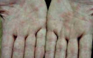 Как лечить иерсиниоз у взрослых?