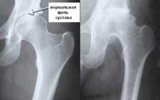 Хондроз тазобедренного сустава симптомы лечение