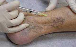 Тромбофлебит лечение симптомы