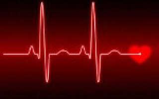 Аритмия сердца у ребенка что это такое и как лечить